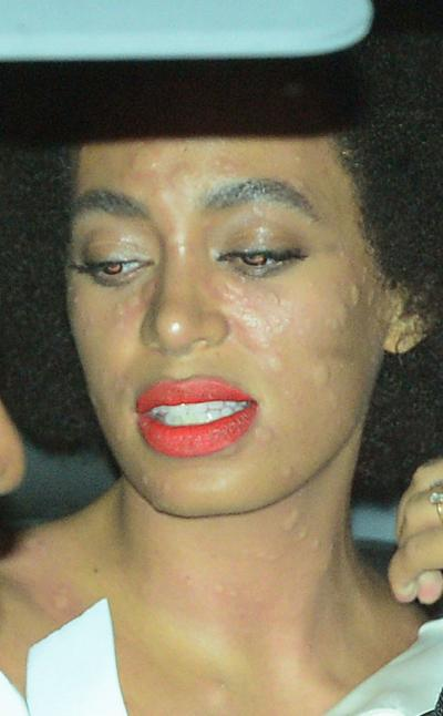 solange_knowles_hives.jpg
