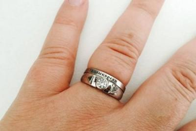 turned_the_bone_from_his_amputated_leg_into_his_wifes_engagement_ring_
