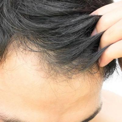 ما هي المدة المناسبة للقيام بزرع الشعر قبل موعد حفل الزفاف؟