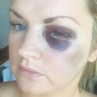 Groom Attacks and Breaks Bridesmaid's Face