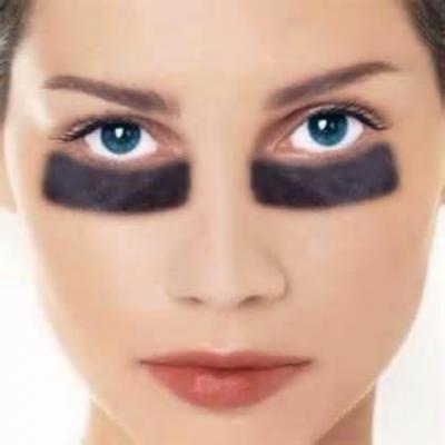 Under-Eye 'Bags' or Festoons?
