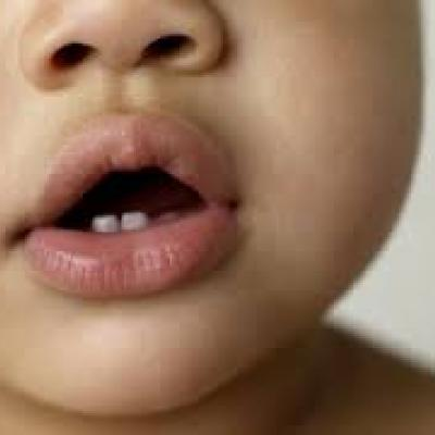 What You Need to Know About Teething