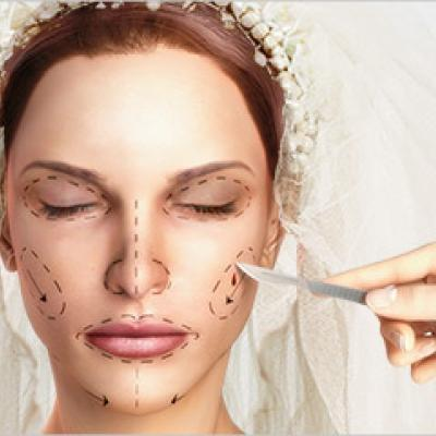 4 Tips for Brides Considering Plastic Surgery